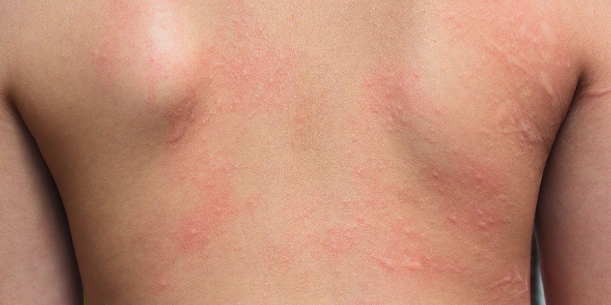 Allergic Contact Dermatitis Treatment