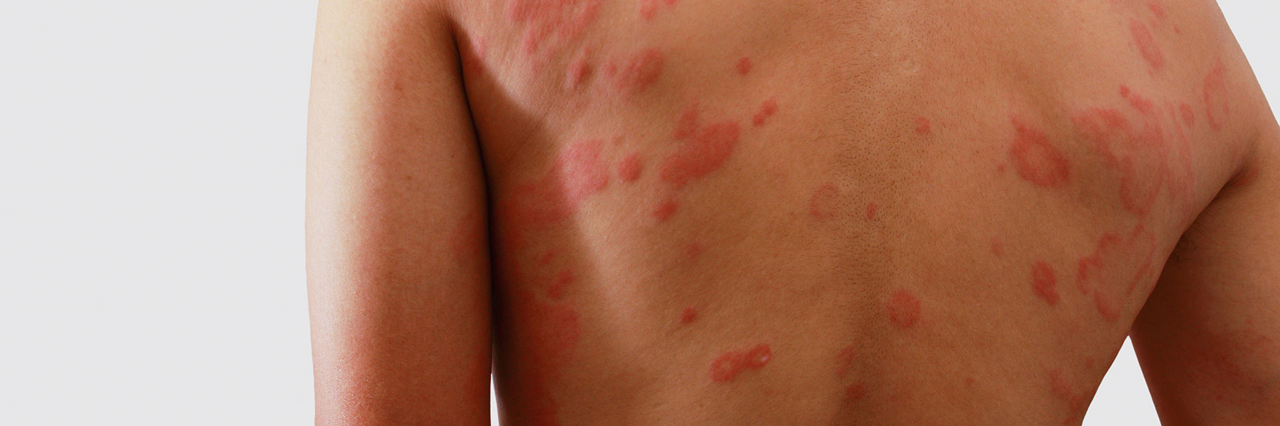 Portland Eczema Treatments