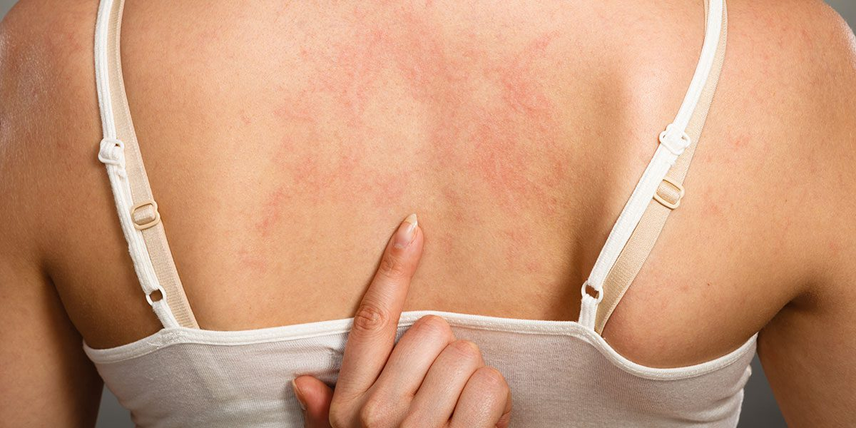 Irritant Contact Dermatitis Treatment