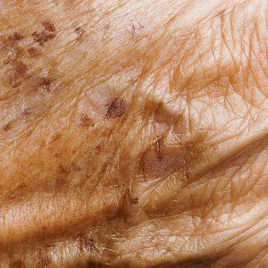 Portland Lentigo Dermatologist