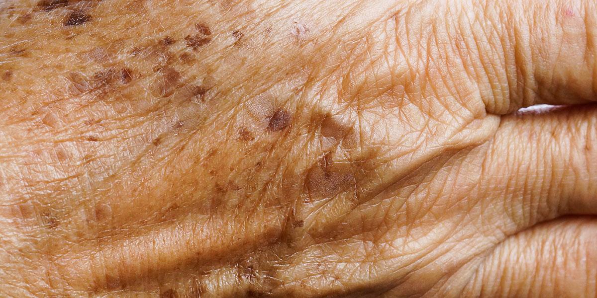 Lentigo Removal Norris Dermatology Amp Laser Northwest