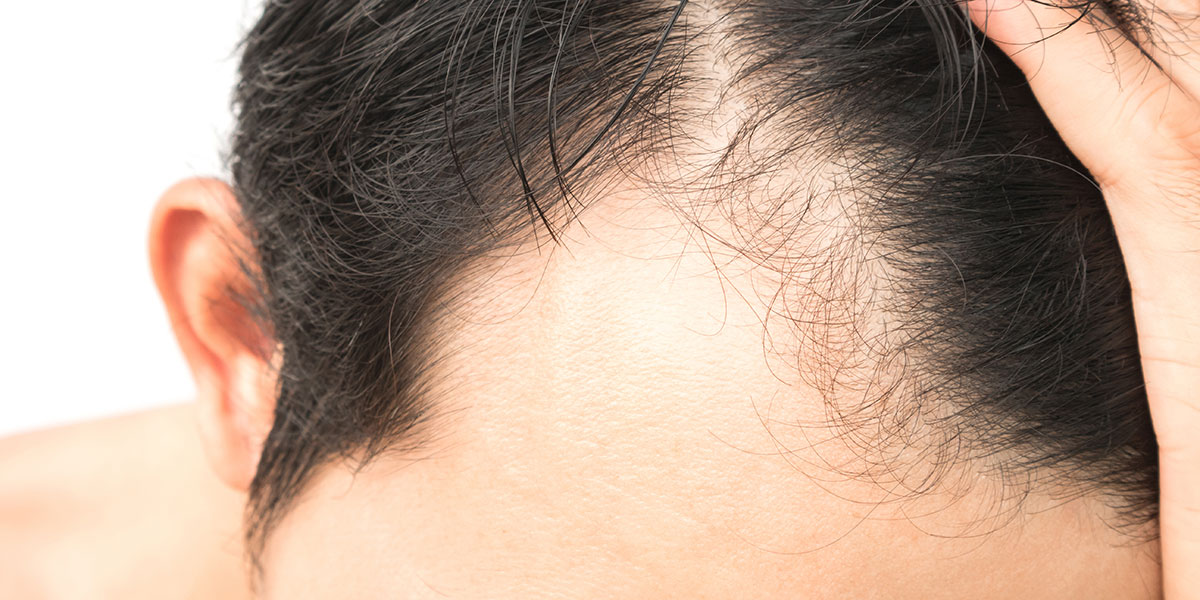 Alopecia Areata Hair Loss Treatment | Norris Dermatology Portland OR