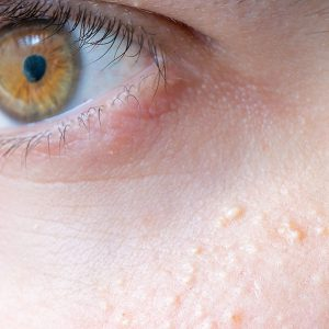portland skin milia removal