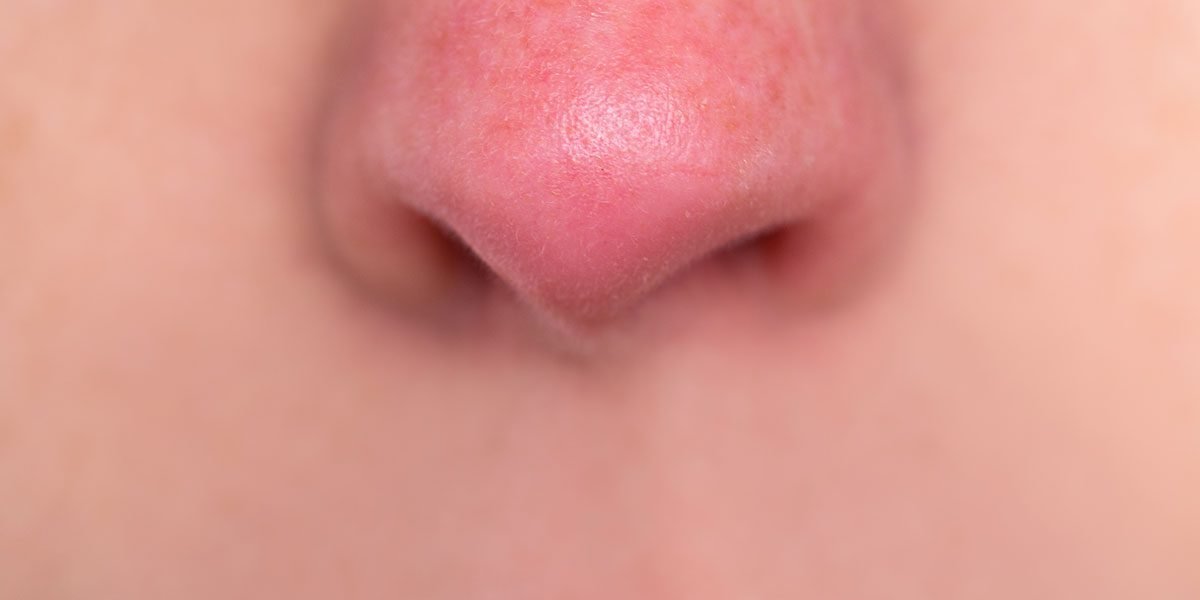 Portland Rosacea Treatments