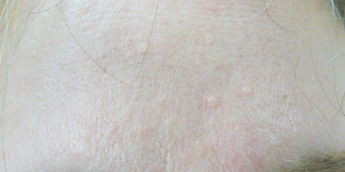Sebaceous Hyperplasia Treatment