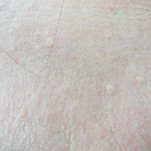Portland Sebaceous Hyperplasia Treatment