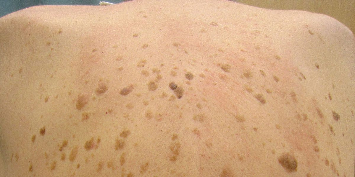 Seborrheic Keratosis Treatment