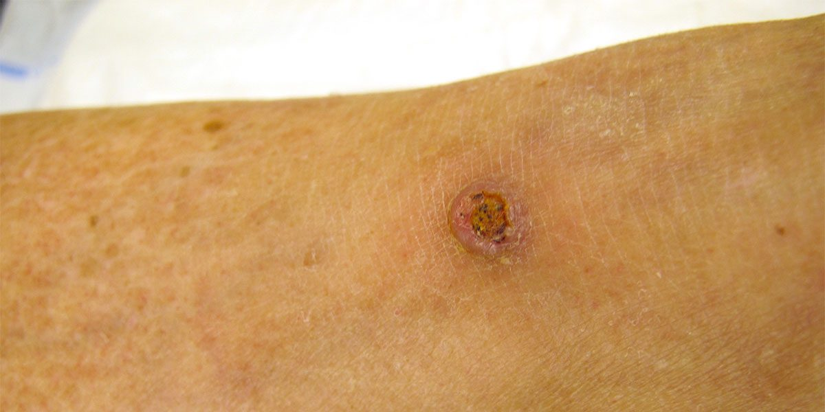 Squamous Cell Carcinoma Treatment