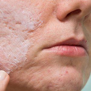 Portland Acne Scar Treatments