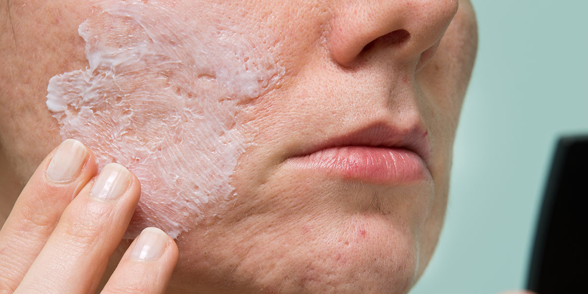 Portland Acne Scar Treatments Norris Dermatology Amp Laser