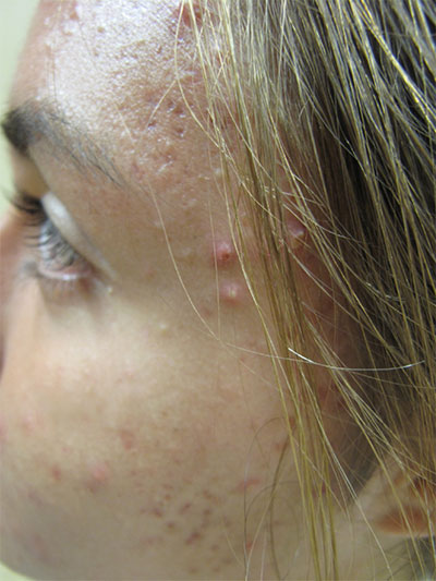 Portland Acne Scar Treatment