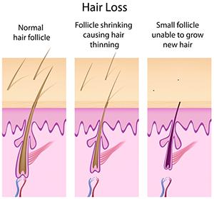 hair loss Portland