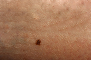 Portland Melanoma Treatment