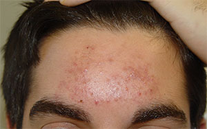 Acne on forehead