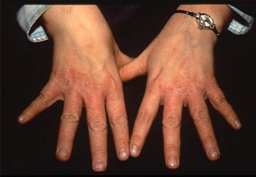 Portland Irritant Contact Dermatitis Treatment