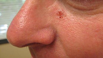 Portland Basal Cell Carcinoma Treatment