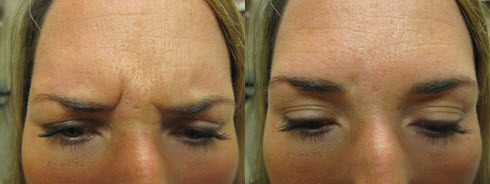 Portland Botox Treatment