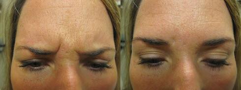 Portland Botox Treatment