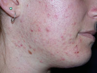 Portland Acne Treatment