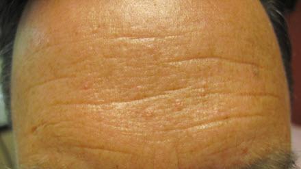 Portland Sebaceous Hyperplasia Dermatologist