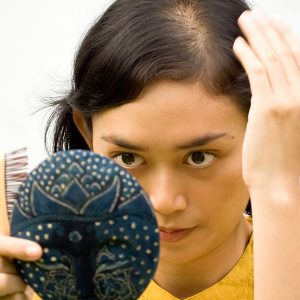 Portland Scarring Alopecia Treatment