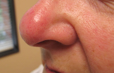 Portland Rosacea Treatment