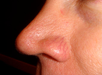Superficial blood vessels around the nose are common in Rosacea