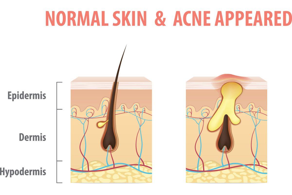 Portland Acne Doctor Dermatologist