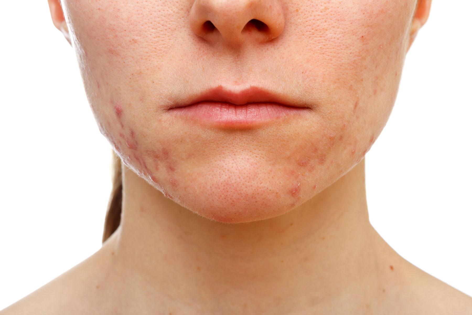 Scars acne keanu reeves Dior Fall