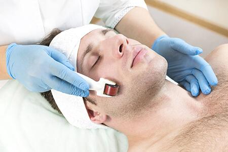 Man Receiving Microneedling Procedure