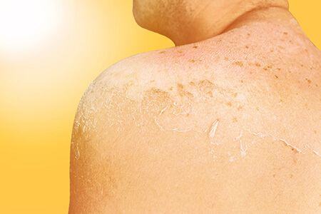 Skin Peeling from Damaging Sunburn